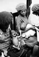 Malnourished child, Soweto, 1973