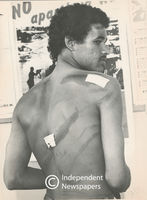 Students shows his injuries inflicted by the Police, Cape Town